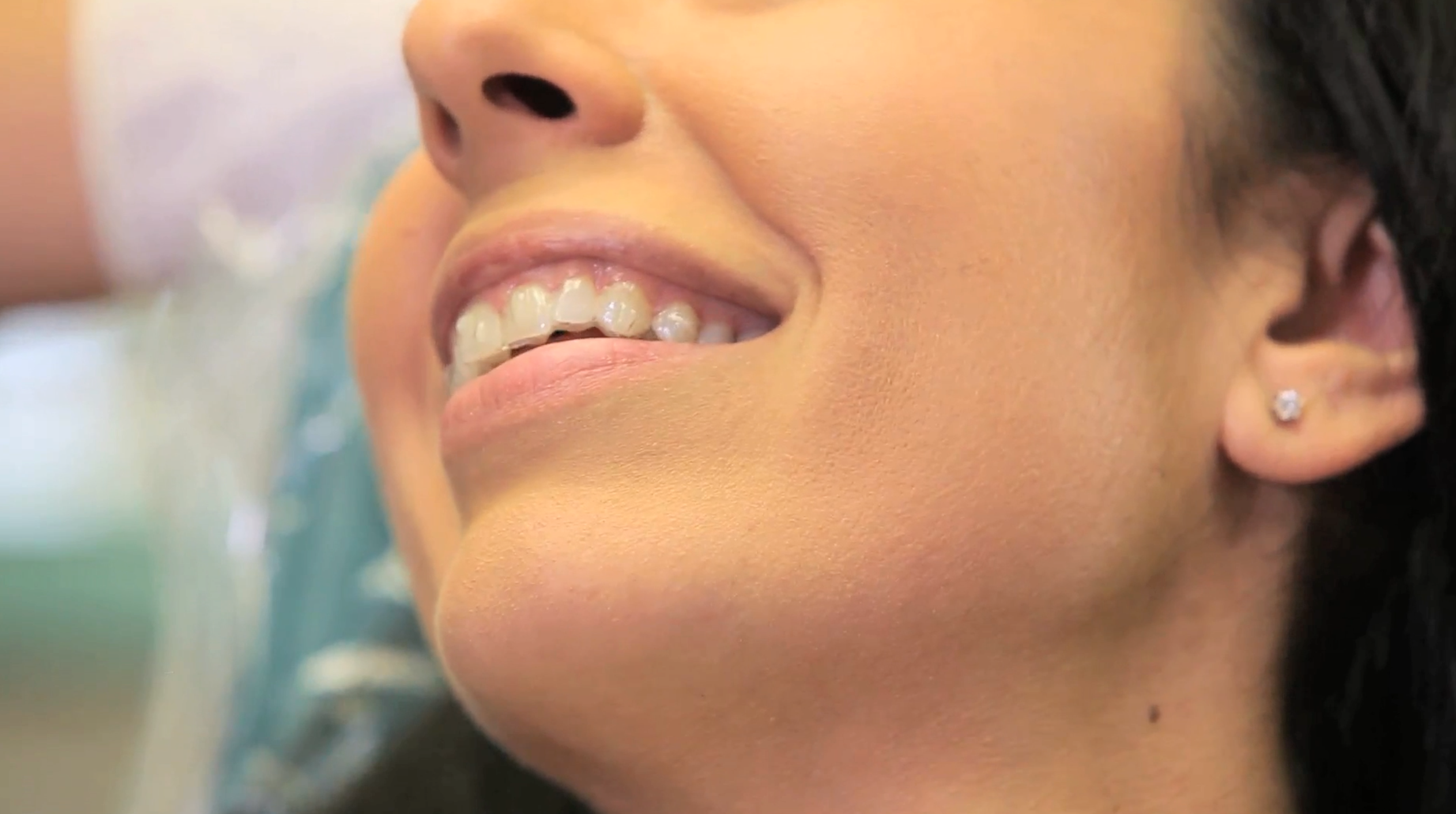 Invisalign with Hudson Orthodontics